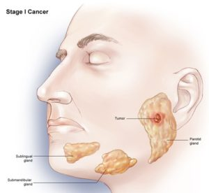 Middlesex County NJ Failure to Diagnose Cancer Lawyer