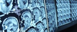 NJ Radiologist Malpractice Lawyers
