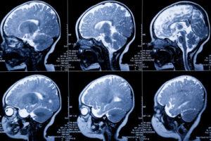 NJ hypoxic ischemix encephalopathy lawyer