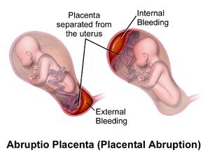 NJ Placental Abruption Lawyer