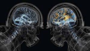 New Jersey Chronic Traumatic Encephalopathy CTE Lawyers