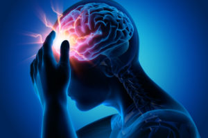 Stroke Misdiagnosis and Delayed Diagnosis New Jersey