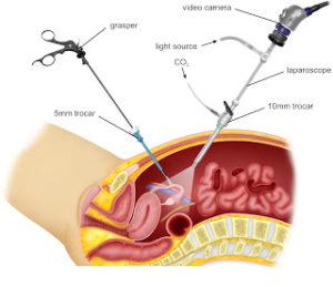 NJ Laproscopic Surgery Injury Attorney