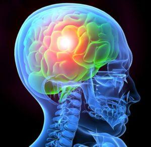 Need a lawyer for traumatic brain injury case NJ
