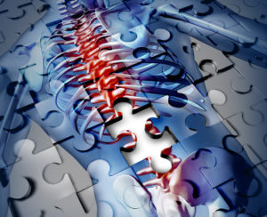 New Jersey Spine Surgery Malpractice Lawyers