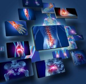 Sue for septic arthritis malpractice NJ lawyers help