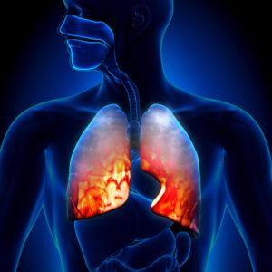 Pneumonia malpractice in NJ