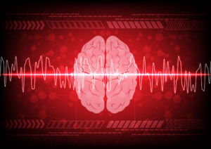 Seizures malpractice lawsuit New Jersey