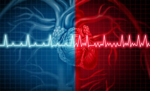 Atrial Fibrillation Lawsuit Help NJ
