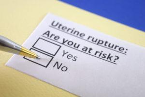 Sue for Uterine Rupture in New Jersey